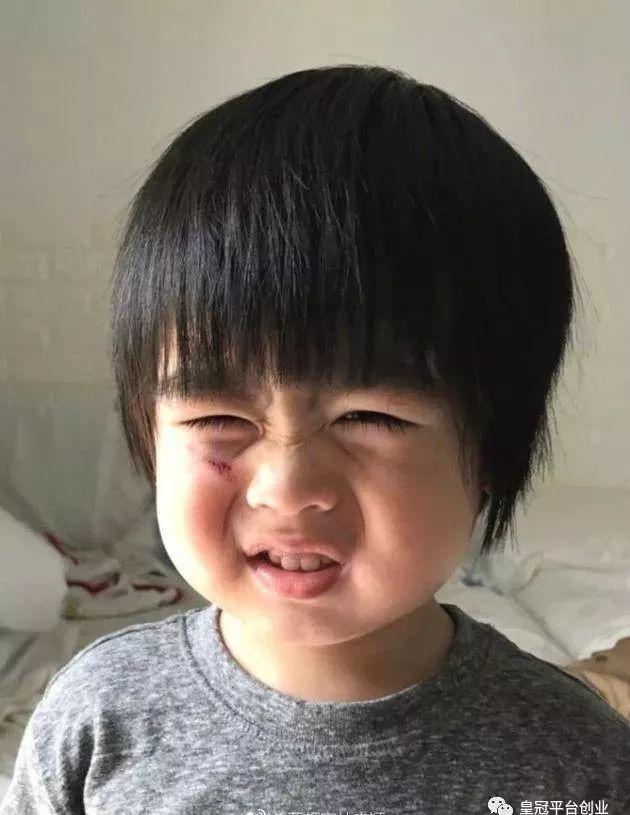 林志颖儿子跌伤脸   萌娃惹人心疼